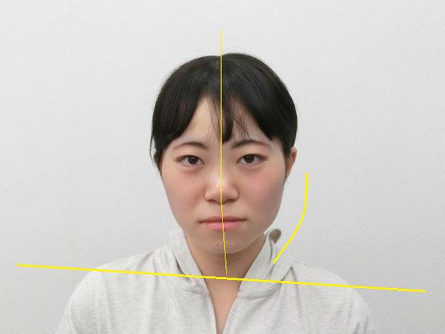 小顔・顔の歪み矯正 U.Aさん(20歳)ビフォア写真