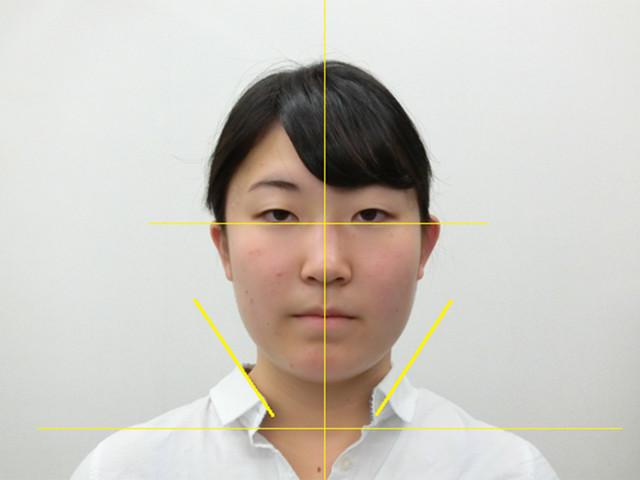 小顔・顔の歪み矯正 M.Sさん(19歳)アフター写真