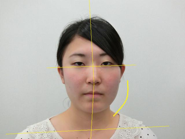 小顔・顔の歪み矯正 M.Sさん(19歳)ビフォア写真