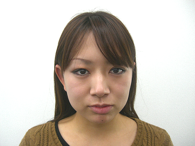美容整体 (K・Yさん)ビフォア写真