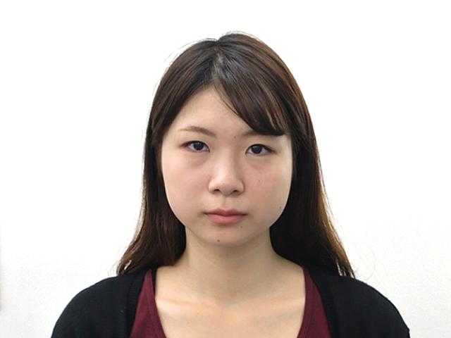 小顔・顔の歪み矯正 (Mさん)アフター写真