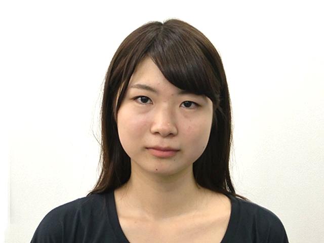 小顔・顔の歪み矯正 (Mさん)ビフォア写真