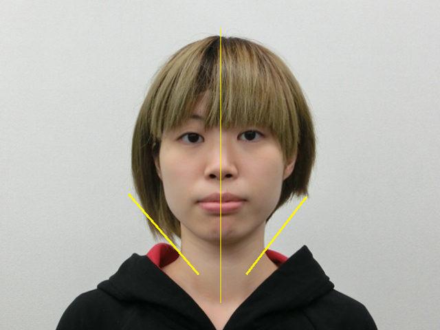 美容整体(全身根本改善)M.Tさん(23歳)アフター写真