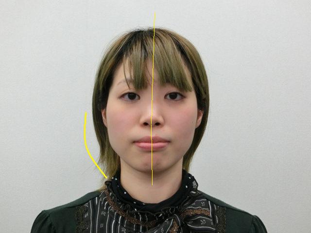 美容整体(全身根本改善)M.Tさん(23歳)ビフォア写真