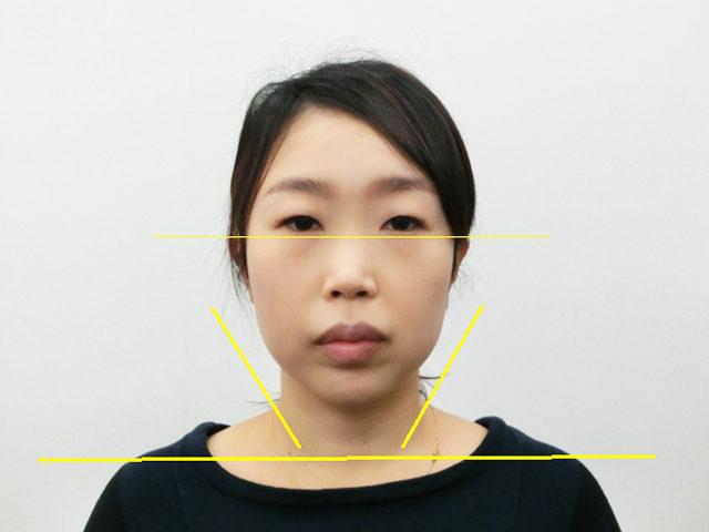 美容整体(全身根本改善)T.Mさん(37歳)アフター写真