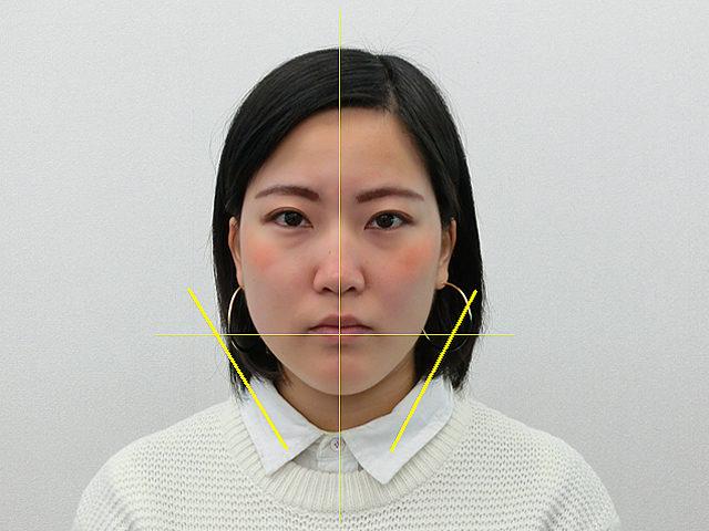 小顔・顔の歪み矯正(K.Mさん20歳)アフター写真