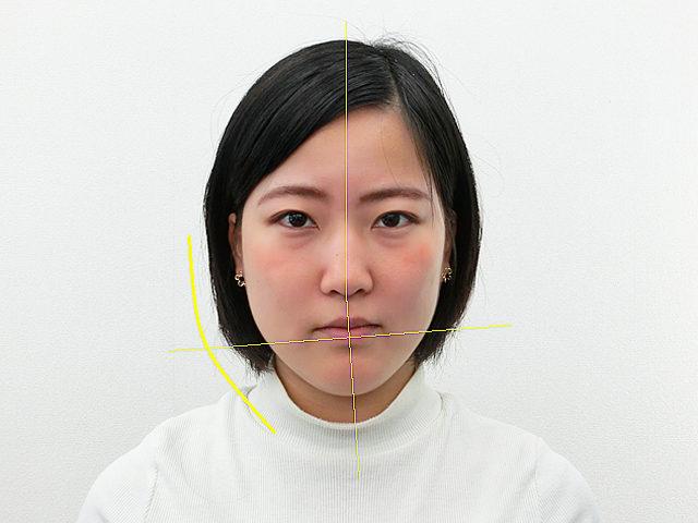 小顔・顔の歪み矯正(K.Mさん20歳)ビフォア写真