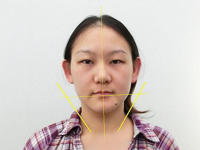 美容整体(全身根本改善)I.Tさん(33歳)アフター写真