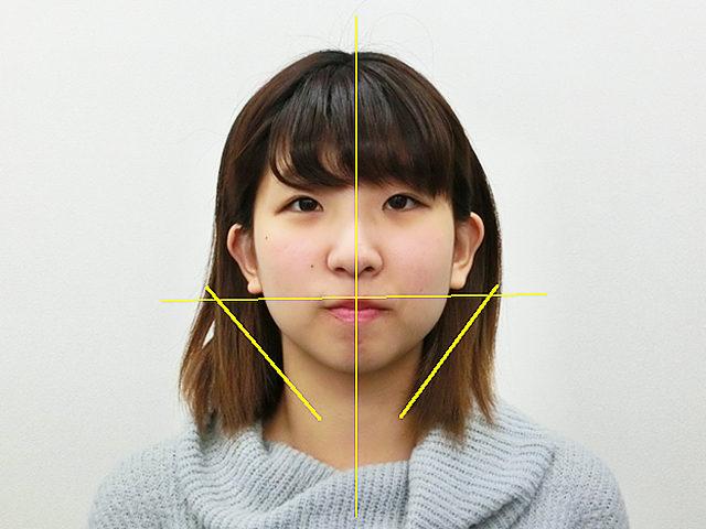 小顔・顔の歪み矯正S.Mさん(20歳)アフター写真