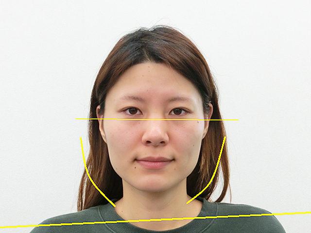 小顔・顔の歪み矯正 H.Yさん(31歳)ビフォア写真