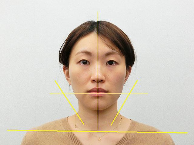 小顔・顔の歪み矯正 H.Aさん(27歳)アフター写真