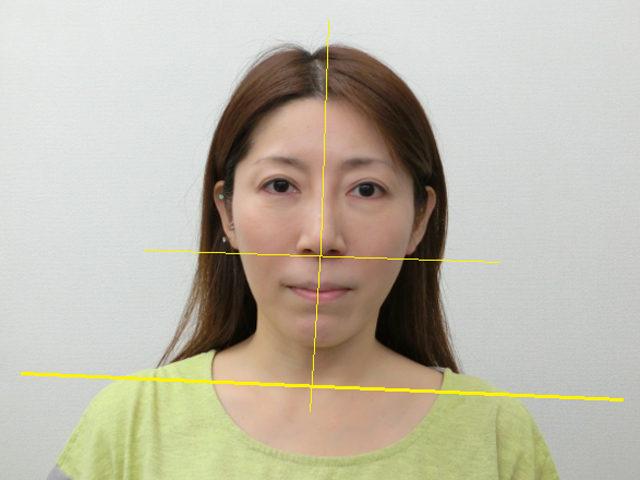 美容整体(全身根本改善)N.Kさん(43歳)ビフォア写真