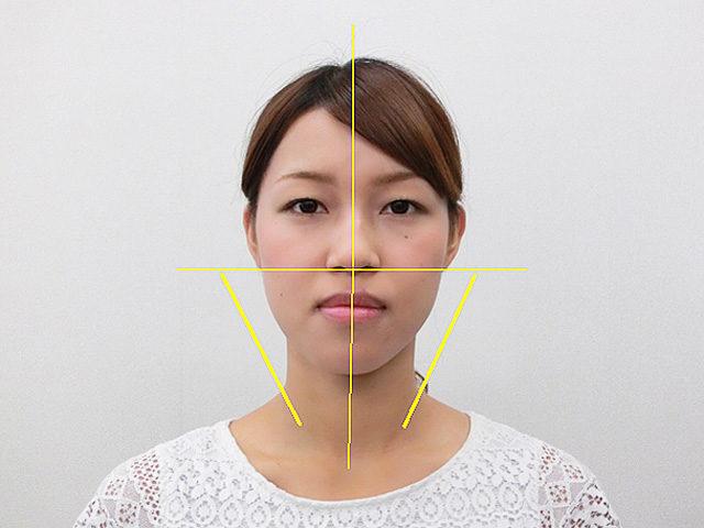 小顔・顔の歪み矯正 S.Kさん(24歳)アフター写真