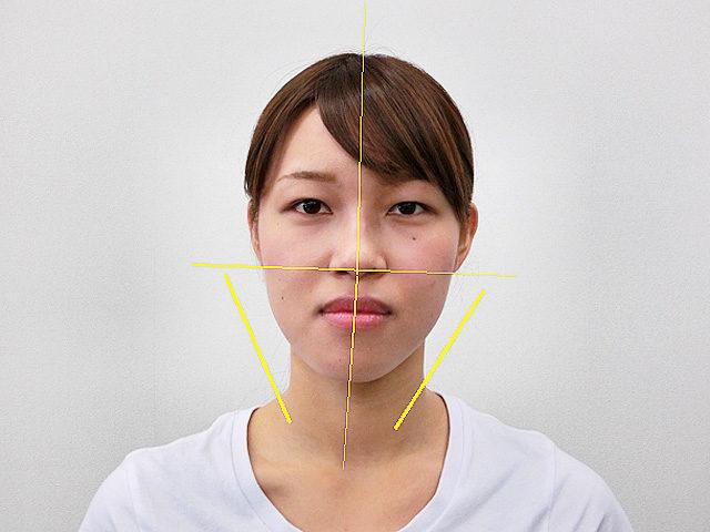 小顔・顔の歪み矯正 S.Kさん(24歳)ビフォア写真