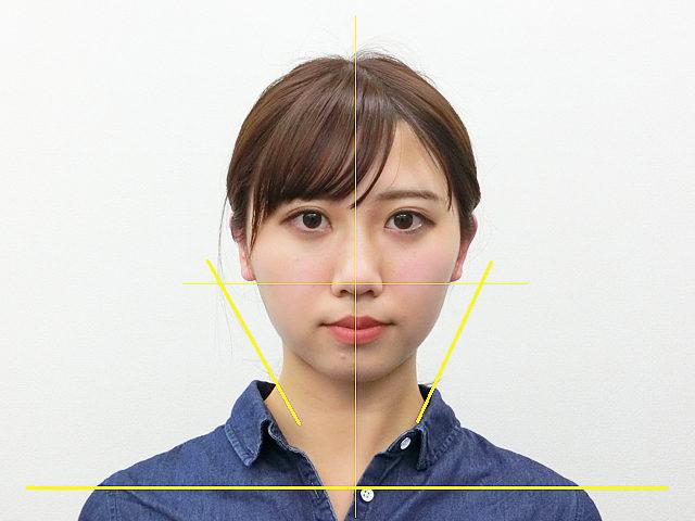 小顔・顔の歪み矯正 A.Mさん(20歳)アフター写真