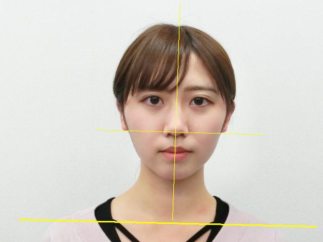 小顔・顔の歪み矯正 A.Mさん(20歳)ビフォア写真