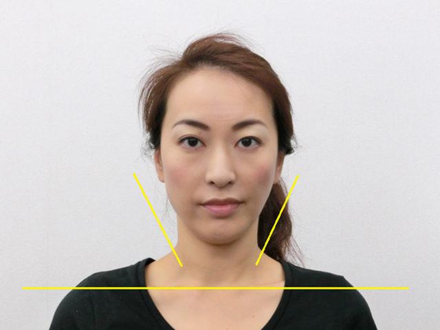 美容整体(全身根本改善)N.Aさん(39歳)アフター写真