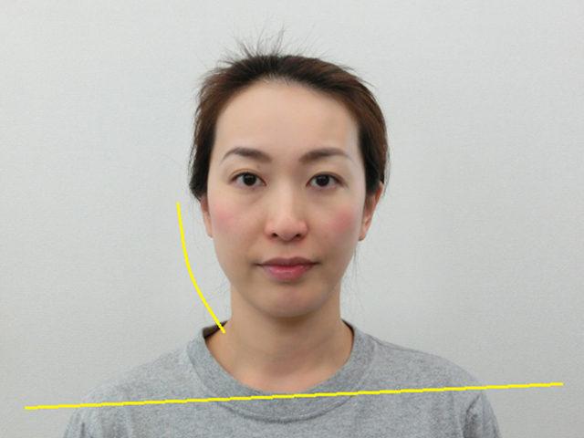 美容整体(全身根本改善)N.Aさん(39歳)ビフォア写真