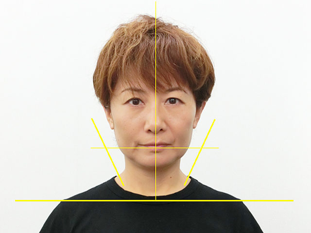 美容整体(全身根本改善)S.Mさん(50歳)アフター写真