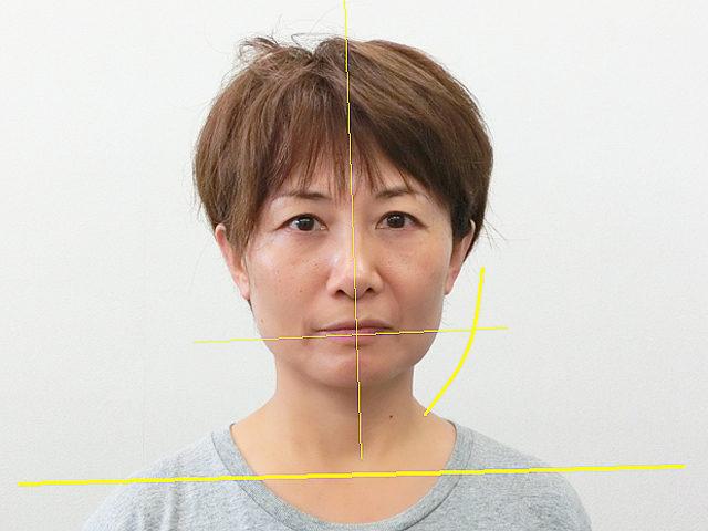 美容整体(全身根本改善)S.Mさん(50歳)ビフォア写真