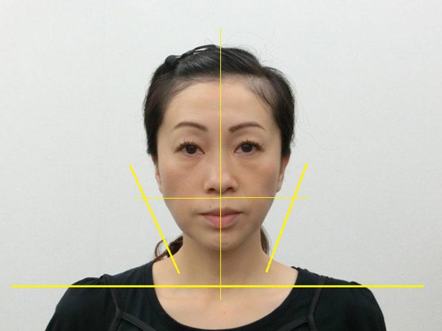 美容整体(全身根本改善)S.Nさん(44歳)アフター写真
