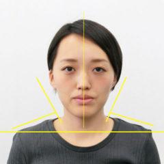 美容整体(全身根本改善)I.Eさん(26歳)