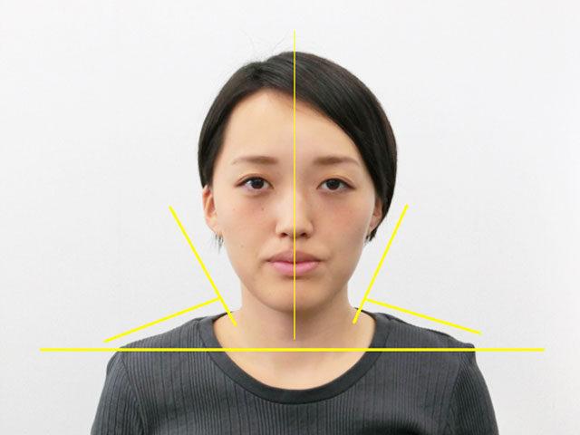 美容整体(全身根本改善)I.Eさん(26歳)アフター写真