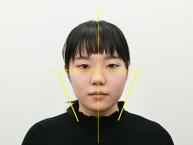 美容整体(全身根本改善)M.Mさん(20歳)アフター写真