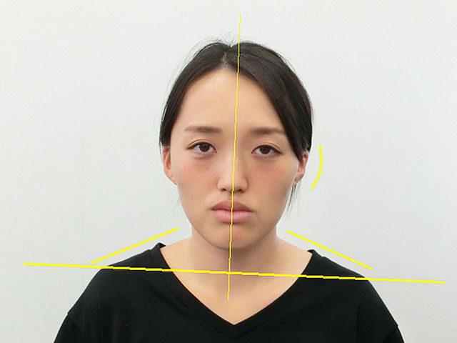 美容整体(全身根本改善)I.Eさん(26歳)ビフォア写真