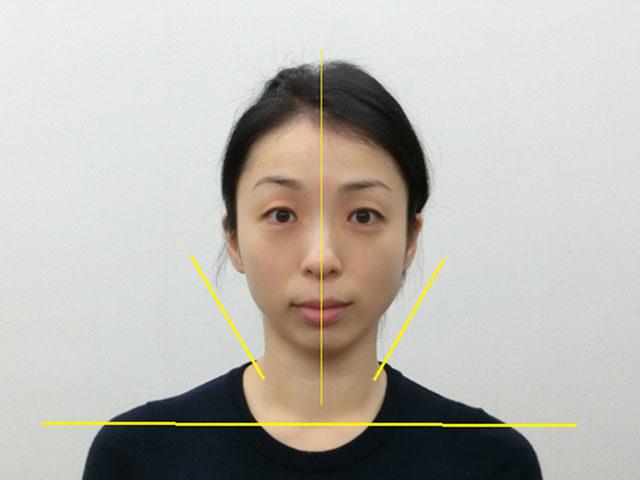 小顔・顔の歪み矯正 T.Tさん(41歳)アフター写真