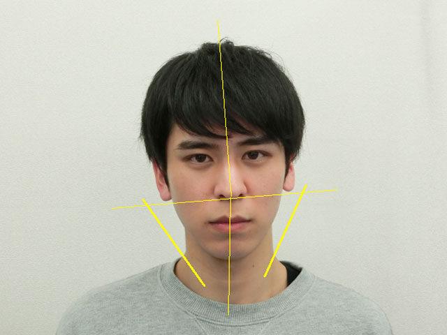 小顔・顔の歪み矯正 K.Rさん(22歳)ビフォア写真