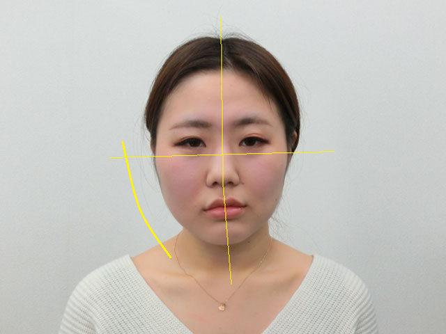 美容整体(全身根本改善)S.Kさん(28歳)ビフォア写真