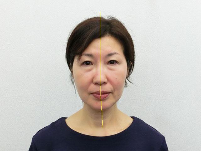 美容整体(全身根本改善)M.Tさん(56歳)ビフォア写真