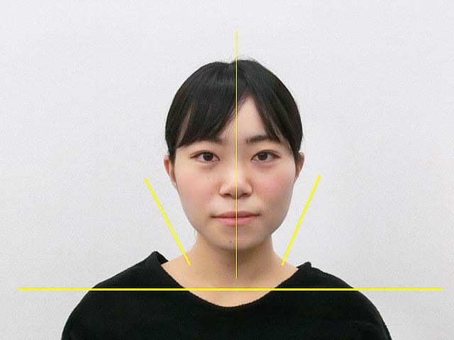 小顔・顔の歪み矯正 U.Aさん(20歳)アフター写真