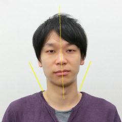 小顔・顔の歪み矯正 N.Mさん(31歳)