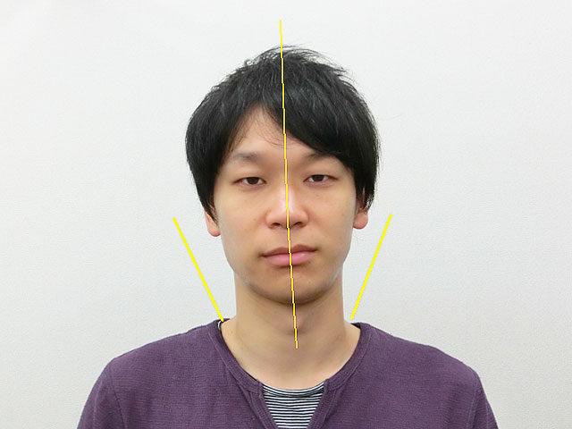 小顔・顔の歪み矯正 N.Mさん(31歳)アフター写真