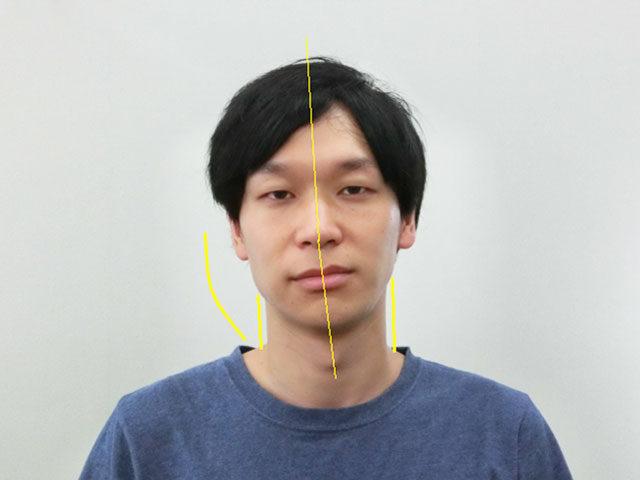 小顔・顔の歪み矯正 N.Mさん(31歳)ビフォア写真