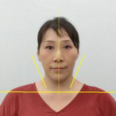 美容整体(全身根本改善)N.Nさん(45歳)