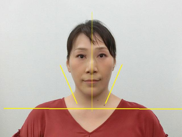 美容整体(全身根本改善)N.Nさん(45歳)アフター写真