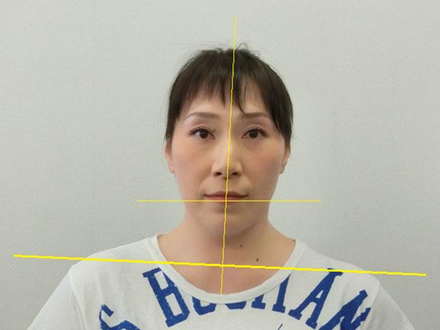 美容整体(全身根本改善)N.Nさん(45歳)ビフォア写真