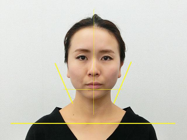 小顔・顔の歪み矯正 S.Aさん(28歳)アフター写真