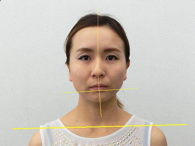 小顔・顔の歪み矯正 S.Aさん(28歳)ビフォア写真