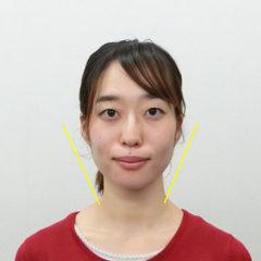 小顔・顔の歪み矯正 K.Tさん(26歳)