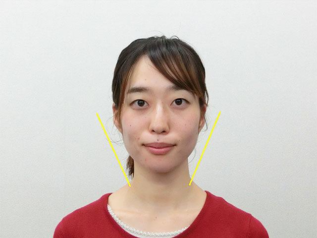 小顔・顔の歪み矯正 K.Tさん(26歳)アフター写真