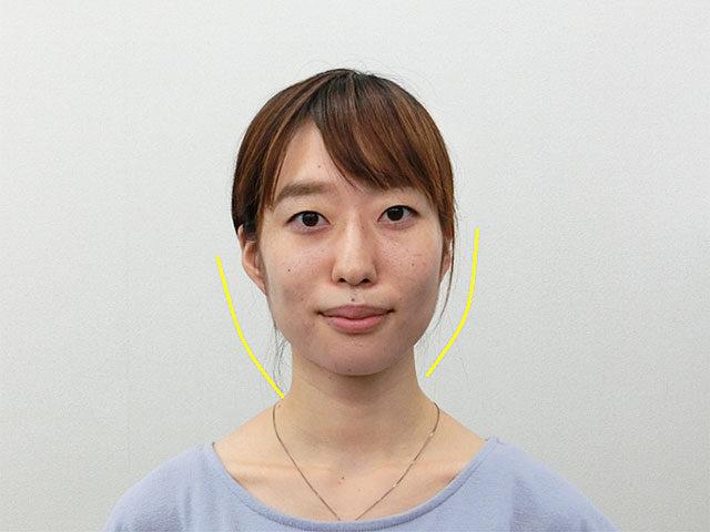 小顔・顔の歪み矯正 K.Tさん(26歳)ビフォア写真