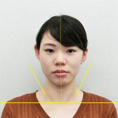 小顔・顔の歪み矯正 O.Aさん(24歳)