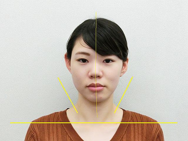 小顔・顔の歪み矯正 O.Aさん(24歳)アフター写真