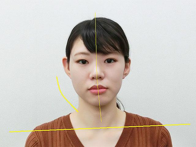 小顔・顔の歪み矯正 O.Aさん(24歳)ビフォア写真