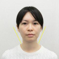 小顔・顔の歪み矯正 N.Sさん(28歳)