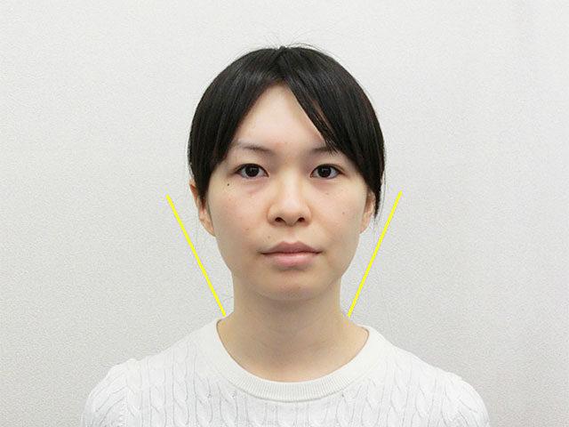 小顔・顔の歪み矯正 N.Sさん(28歳)アフター写真